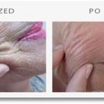 Mezolift - Hydrobalans, Skinbooster, rewitalizacja