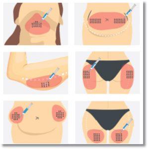 Prostrolane Inner B - peptydowa terapia ciała
